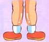 (3)浮肿型3