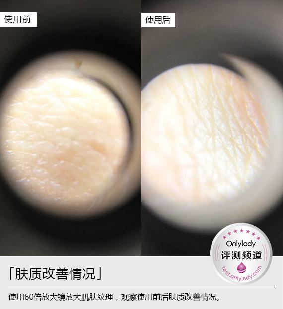 横 肤质改善1