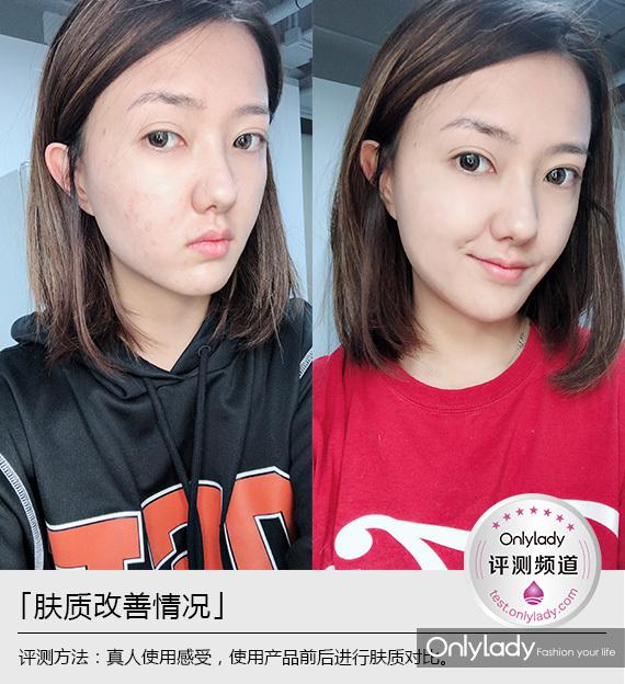 肤质改善1