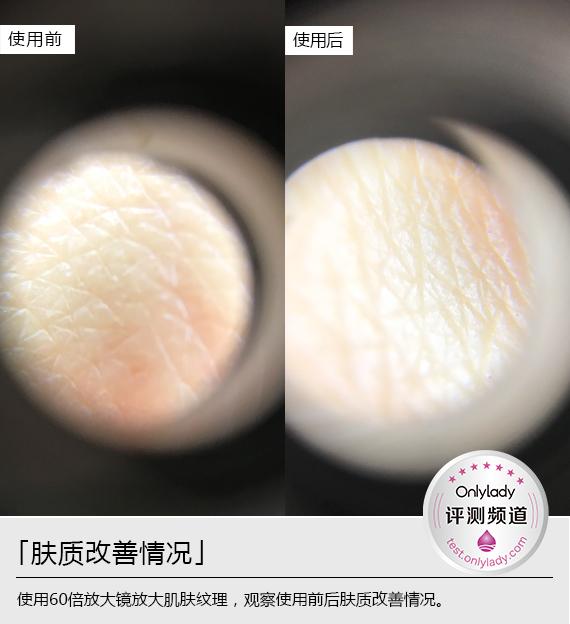 横 肤质改善2
