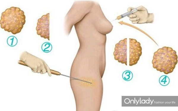 自体脂肪丰胸需要多少次才能达到理想的效果?205