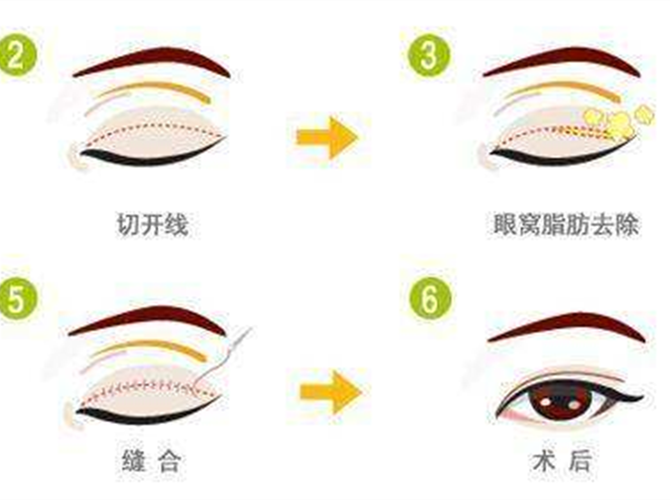 如果割双眼皮失败后再修复手术费用会很贵