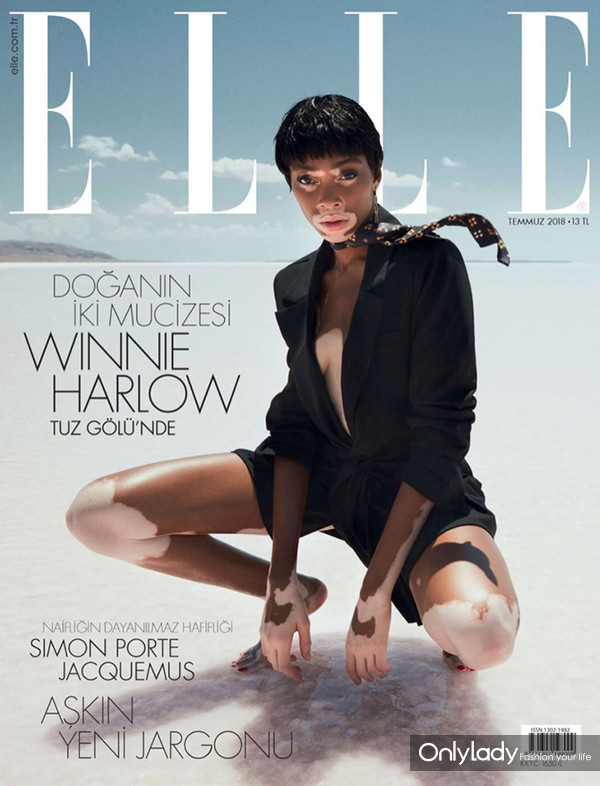 Winnie-Harlow-ELLE-Cover-Photoshoot01